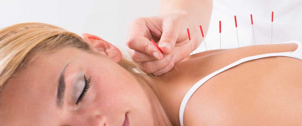 Akupunktur Faydaları Nelerdir?